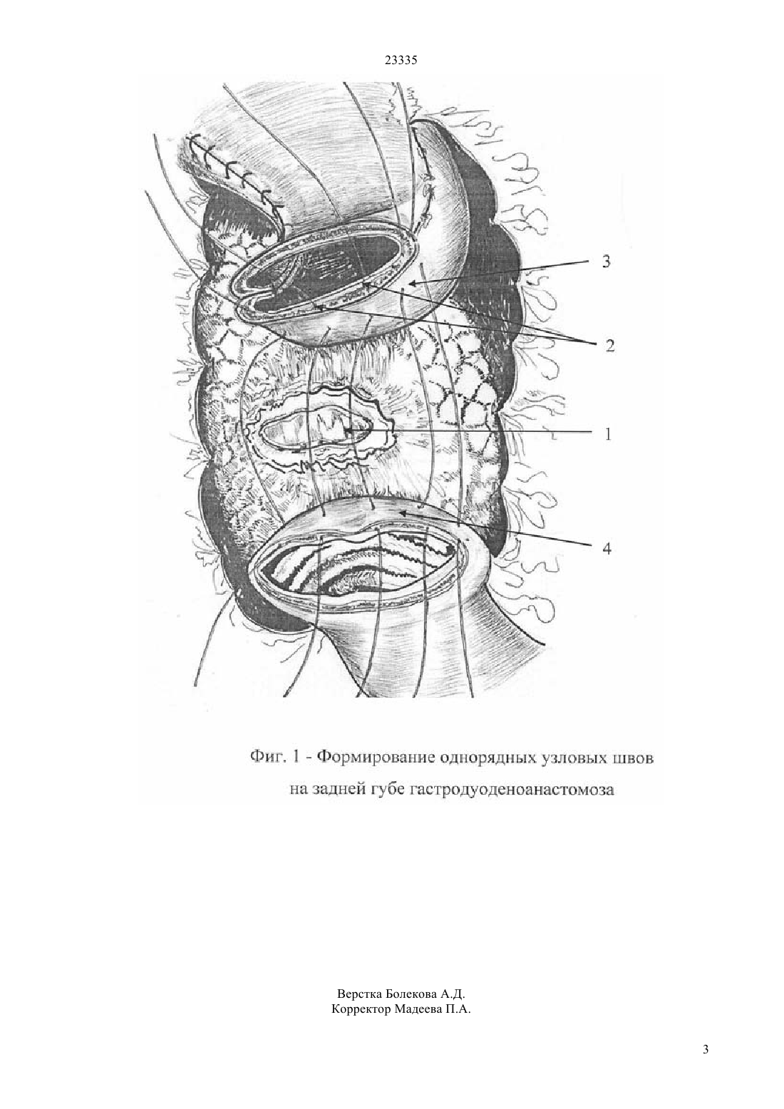 Пенетрирующая язва желудка и двенадцатиперстной кишки