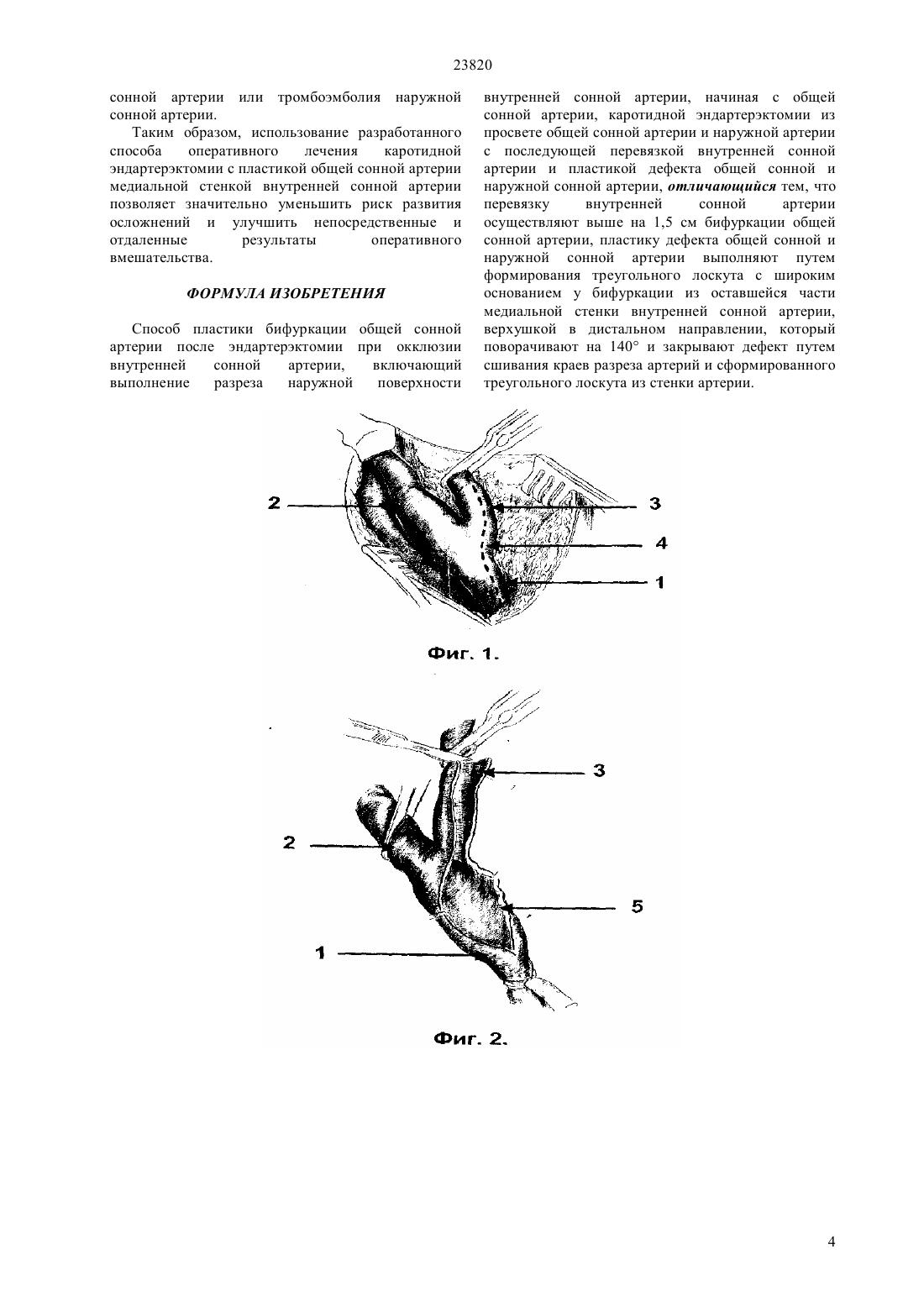 Хронические окклюзии артериальных сосудов